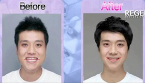 before-after_care